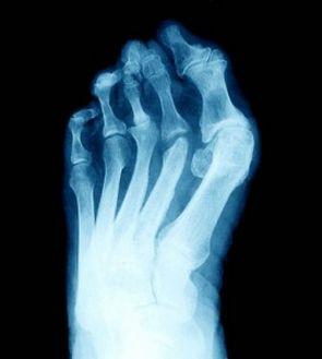 Artrite reumatoride