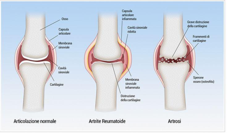 Effetti artrite