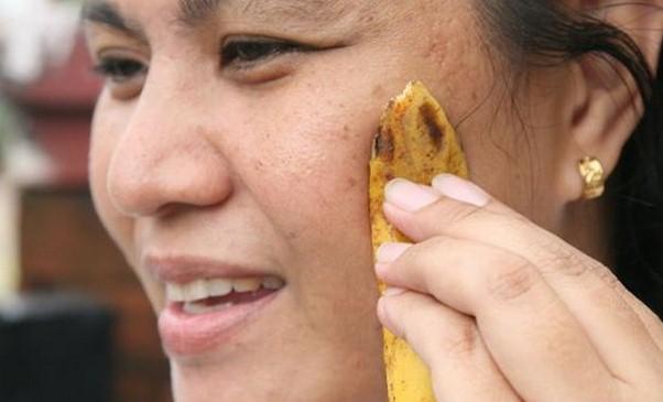 buccia banana usi