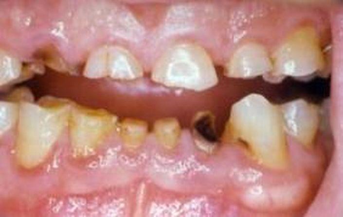 denti danneggiati