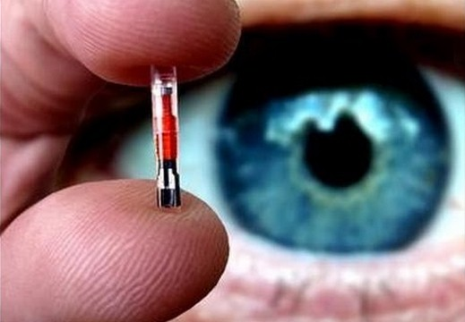 microchip sottocutaneo a vita