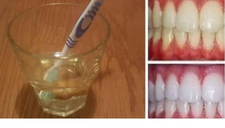 sbiancare i denti con aceto di mele